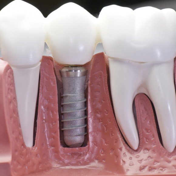 Implant Dentistry in Mona Vale